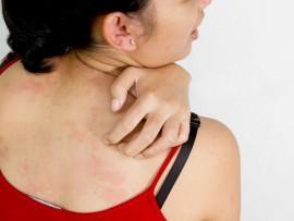 Каким гелем лечить аллергию на коже?