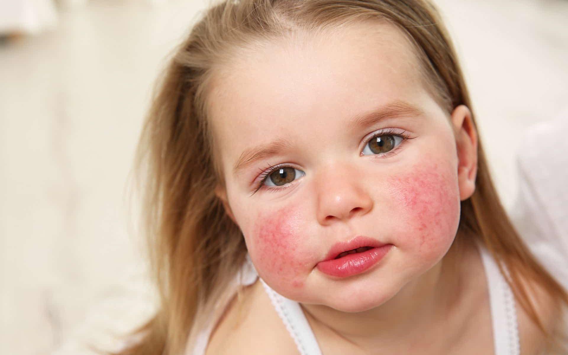 Как давать Энтеросгель ребенку при аллергии